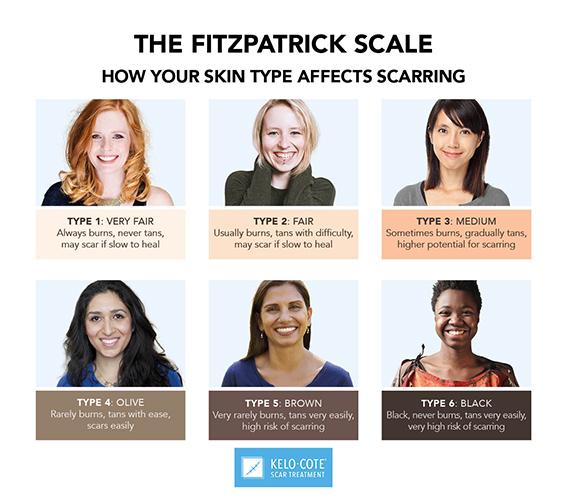 skin type 1